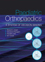 Paediatric Orthopaedics - a System of Decision Making